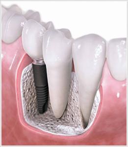 Ankara implant