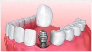 ankara implant fiyatları