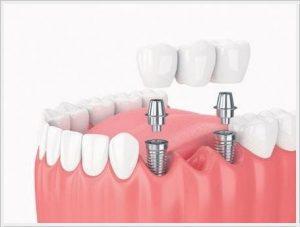 ankara cerrahi implant tedavisi