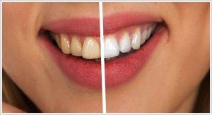 ankara diş beyazlatma fiyatı