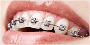 Ortodontik diş teli