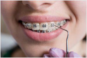 ankara diş teli fiyatları