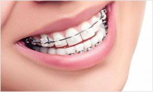 Ankara Ortodontik diş tedavisi