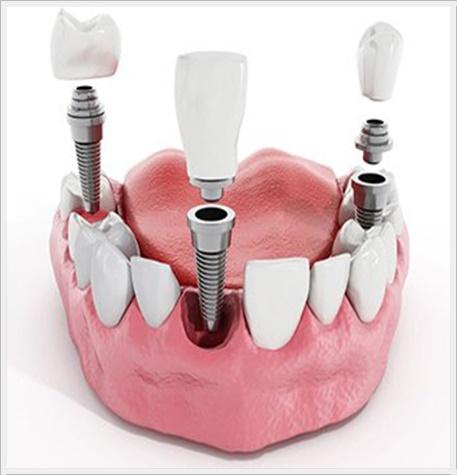ankara implant ömer bayar