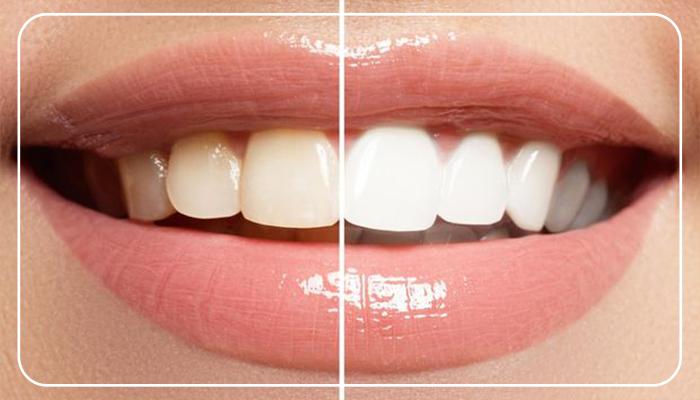bonding diş tedavisi