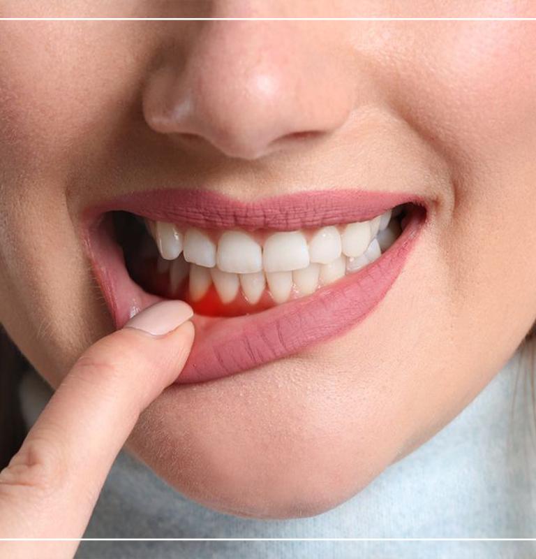 Diş eti çekilmesi tedavisi
