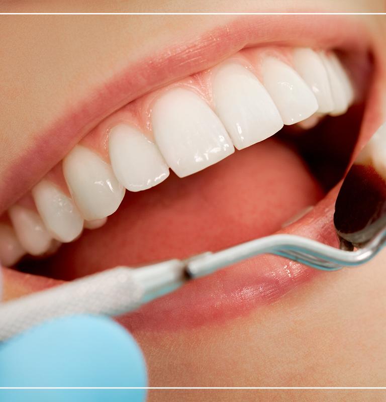 Diş temizletmek dişlere zarar verir mi?