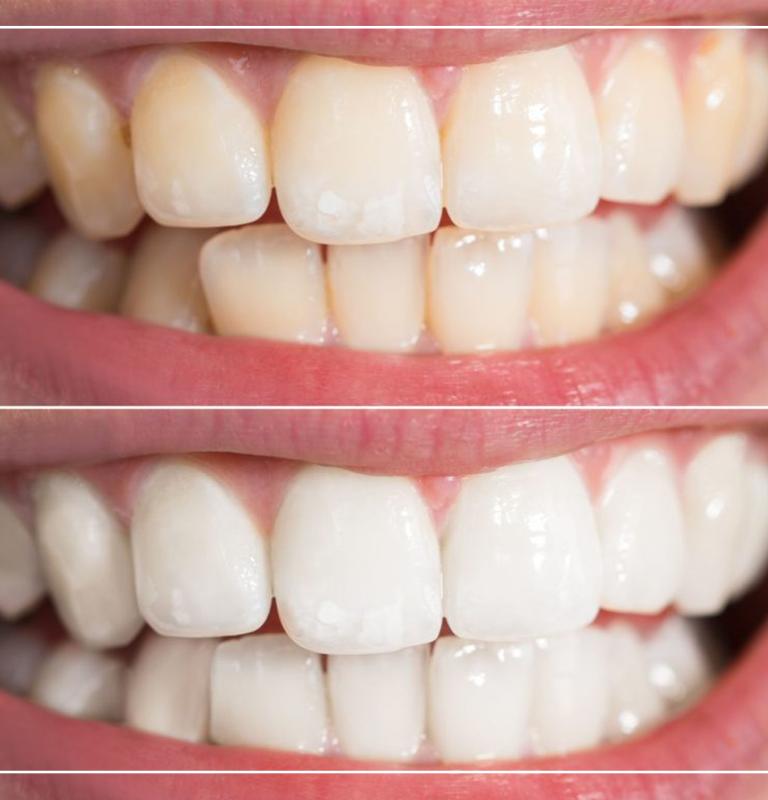Dişler neden renklenir