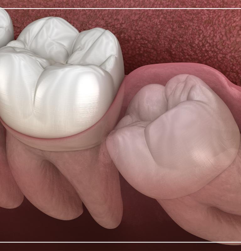 Gömülü dişlerin hepsi çekilmeli mi?