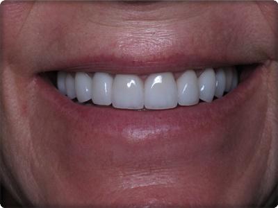 Lamine diş yaptıranların yorumları
