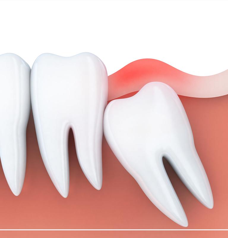 Yirmilik Diş Çekimi Sonrası Ağrı Ne Kadar Sürer?